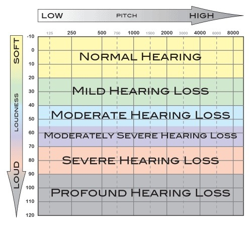 Audiogram of Hearing (4/6)